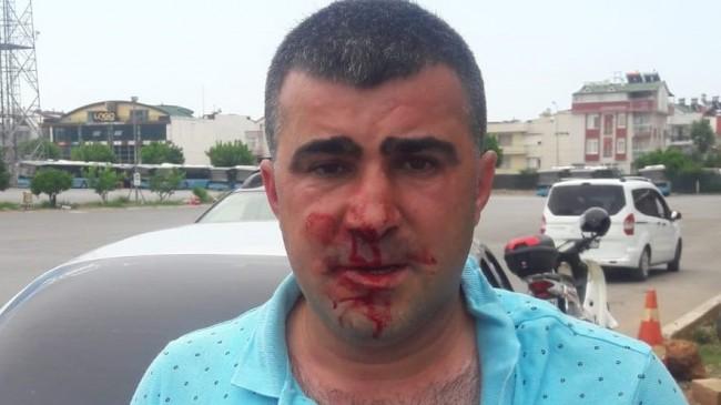 alevi derneği AKP saldırı